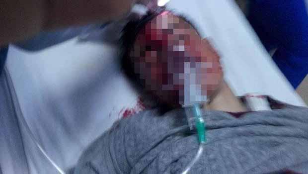 Şırnak'ta gaz bombası kapsülünün isabet ettiği çocuk ağır yaralandı