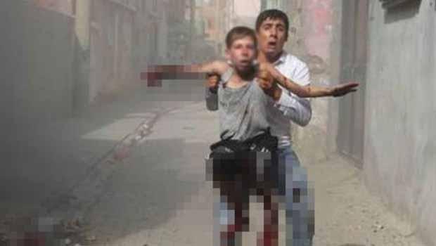 Cizre'de Özel Harekat Timlerinin bıraktığı bomba bir çocuğun elini parçaladı