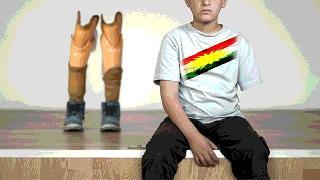 Bacağı Kolu Kopmuş Kürtlerden Kimin Haberi Var?