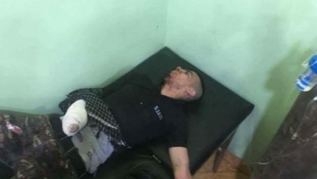 Haşdi Şabi'nin Havan topu Türkmen Vekilin evine düştü