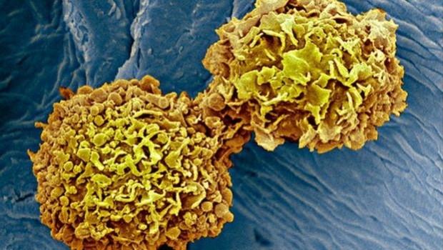 Tıp dünyası kanser için evrensel kan testi hedefine yaklaştı