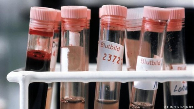 Kan testiyle erken kanser teşhisi