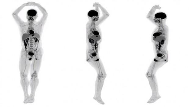 Tüm vücudu görüntüleyen 3D tarayıcı geliştirildi