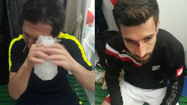 Cizre Spor'a ırkçı saldırı: Oyuncular darp edildi