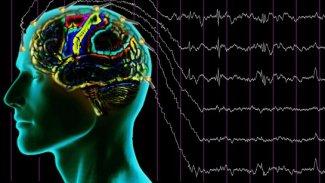 Beyin rahatsızlıkları için implant geliştirildi