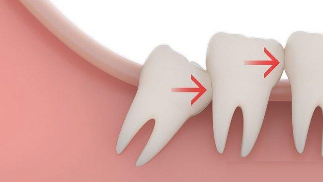 Artık 3. kez dişleriniz çıkabilir