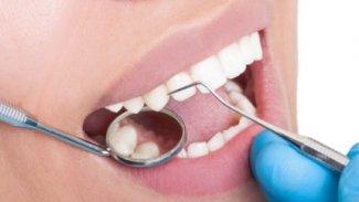 Diş minesini onaran jelle dolgular tarih oluyor