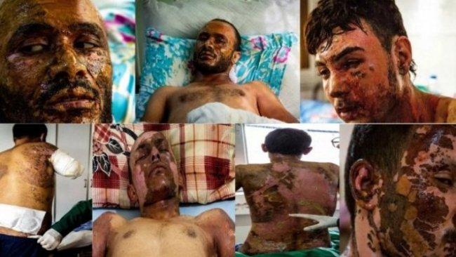 Newsweek: Rojava'da kimyasal silah kullanımı belgelendi
