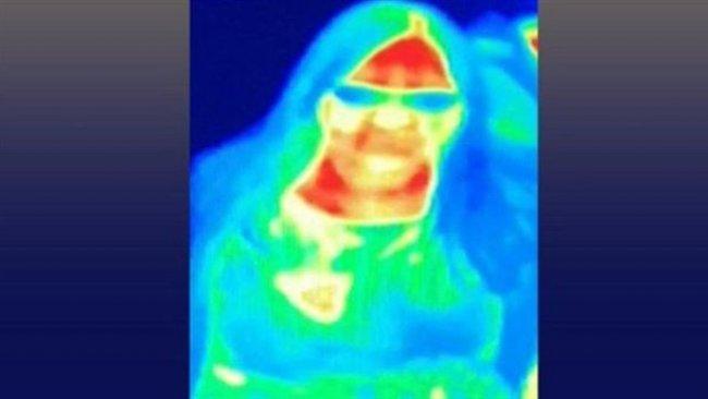 İngiltere'de bir kadın müzedeki termal kameradan meme kanseri olduğunu öğrendi
