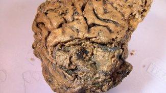 2600 yıllık insan beyni sağlam olarak bulundu