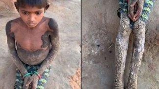 7 yaşındaki kız çocuğu taşlaşıyor