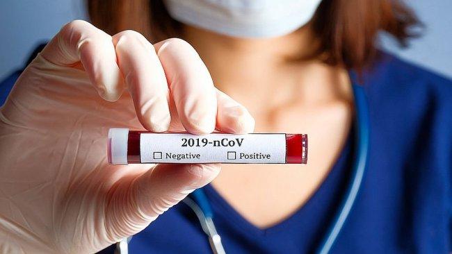 Coronavirüse yeni isim verildi