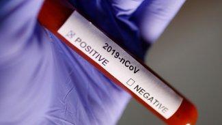 Korona virüsünden kurtulanlardan kötü haber