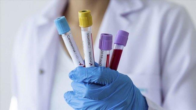 Erbil'de ikinci koronavirüs vakası