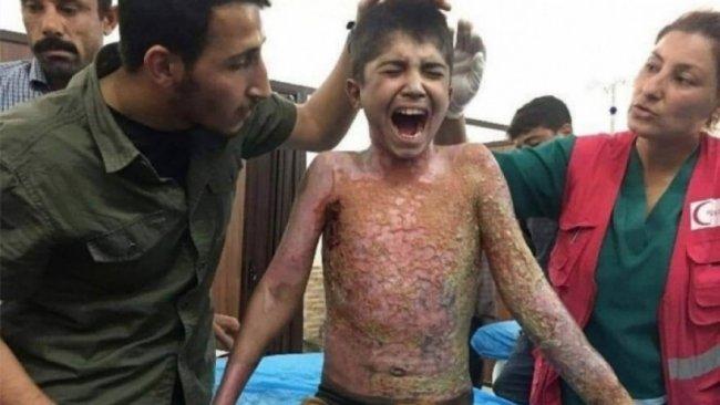 Hava saldırısında vücudu yanan Rojavalı Mihemed'den Başkan Barzani'ye teşekkür