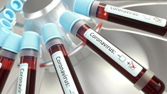 ABD'li uzmanlar koronavirüsü tespit etmek için kan testi geliştirdi