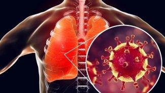 Koronavirüsün akciğerlere verdiği hasar görüntülendi