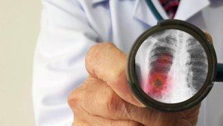 Koronavirüs insan hücrelerine nasıl giriyor?