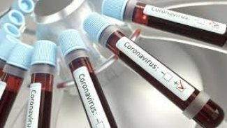 Suriye'de koronavirüsten ikinci ölüm