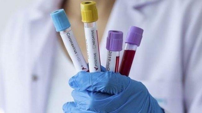 Çin yeni sayı açıkladı: Testi pozitif çıkan fakat belirti göstermeyen hastalar var