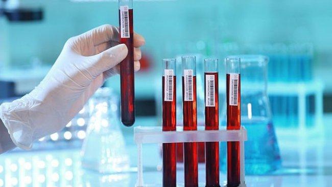 ABD'den koronavirüs kan testine onay