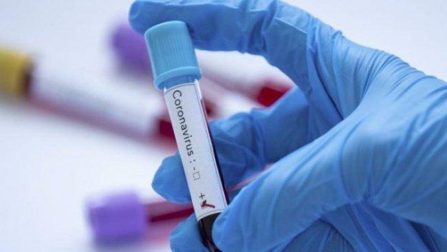 Koronavirüs testi pozitif çıkan kulüp doktoru intihar etti