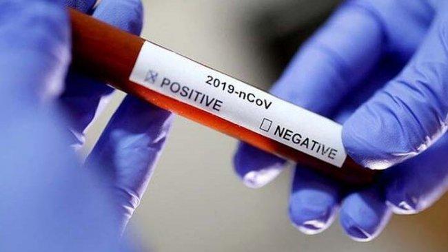 Kerkük'te aynı aileden 7 kişiye virüs bulaştı