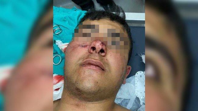 Van'da polis kurşunu bir çocuğu yaraladı