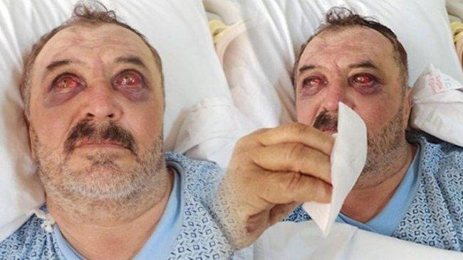 Osman Şiban 'ifade verebilecek durumda değil' denilerek serbest bırakıldı