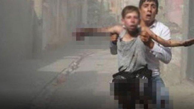 Cizre'deki patlamada uzuv kaybı yaşayan 13 yaşındaki Yusuf'a tazminat