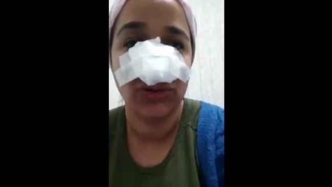 Bingöl'de uzman çavuş bir kadını darbetti