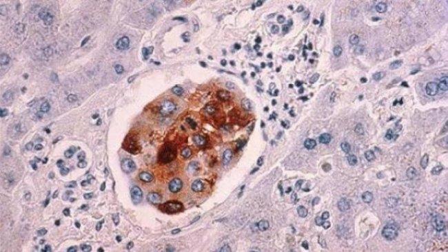 Bilim insanları kanser hücrelerini saniyeler içinde öldüren bir 'şeker bombası' icat etti