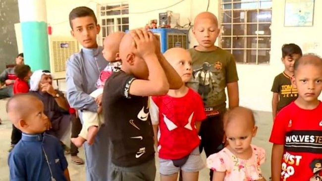 Kerkük'te tanımlanamayan bir hastalık nedeniyle 40 çocuğun saçları döküldü